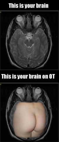 brain_on_ot-ass